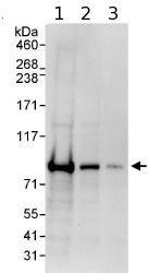 Western blot - Anti-EPS8L2 antibody (ab85960)