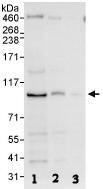Western blot - Anti-MAP4K1 antibody (ab86043)