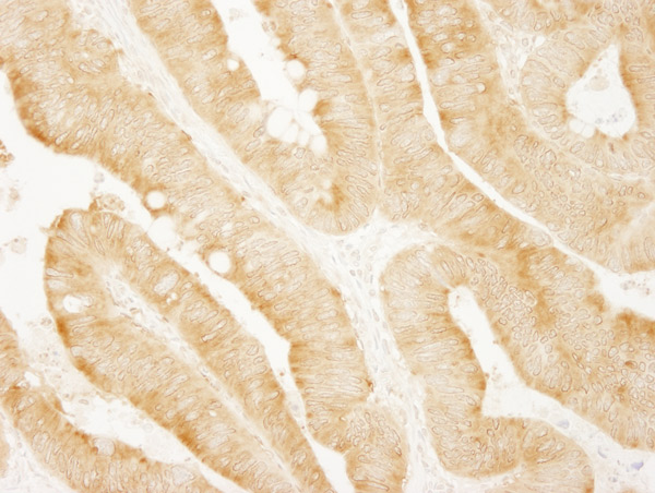 Immunohistochemistry (Formalin/PFA-fixed paraffin-embedded sections) - Anti-PARP4 antibody (ab86066)