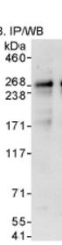 Immunoprecipitation - Anti-QSER1 antibody (ab86072)