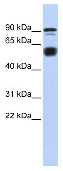 Western blot - Anti-Ctip1 antibody (ab86108)