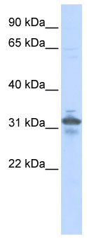 Western blot - Anti-RPIA antibody (ab86123)