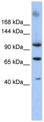 Western blot - Anti-TUT1 antibody (ab86161)