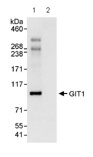 Immunoprecipitation - Anti-GIT1 antibody (ab86235)