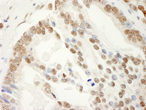 Immunohistochemistry (Formalin/PFA-fixed paraffin-embedded sections) - Anti-SAM68 antibody (ab86239)