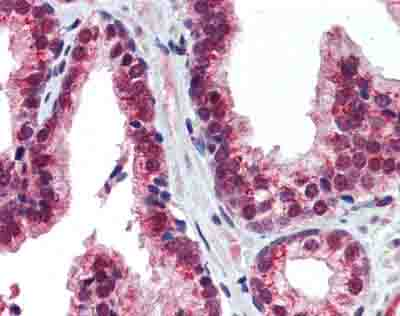 Immunohistochemistry (Formalin/PFA-fixed paraffin-embedded sections) - Anti-NR2E1 / Tailless antibody (ab86276)