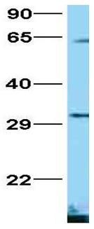 Western blot - Anti-FOXG1 antibody (ab86292)