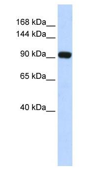 Western blot - Anti-EVI1 antibody (ab86306)