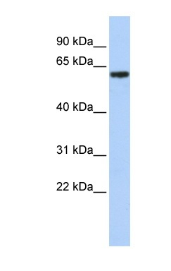 Western blot - Anti-TBX18 antibody (ab86332)