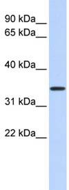 Western blot - Anti-CCDC90A antibody (ab86335)