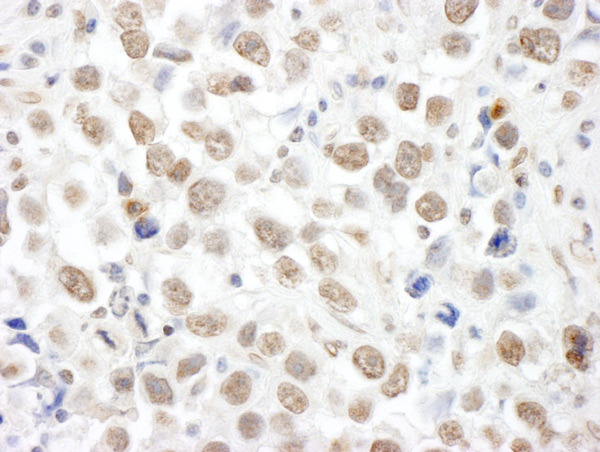 Immunohistochemistry (Formalin/PFA-fixed paraffin-embedded sections) - Anti-p53 BP3 antibody (ab86383)