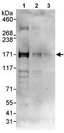 Western blot - Anti-p53 BP3 antibody (ab86383)