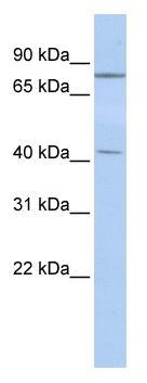 Western blot - Anti-KLHL3 antibody (ab86390)