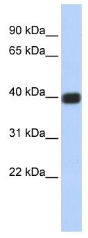 Western blot - Anti-Connexin 36 / GJA9 antibody (ab86408)