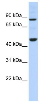 Western blot - Anti-PPME1 antibody (ab86409)