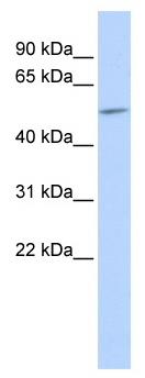 Western blot - Anti-Connexin 59/GJA10 antibody (ab86414)