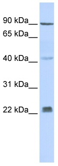 Western blot - Anti-Insig2 antibody (ab86415)
