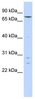Western blot - Anti-KLHL4 antibody (ab86418)