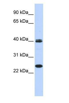 Western blot - Anti-Mesp1 antibody (ab86419)