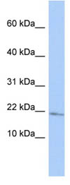 Western blot - Anti-MAFG antibody (ab86524)