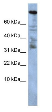 Western blot - Anti-Zinc finger protein 251 antibody (ab86535)