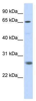Western blot - Anti-RNF186 antibody (ab86546)