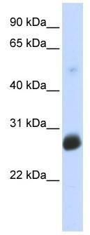 Western blot - Anti-RNF186 antibody (ab86547)