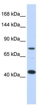 Western blot - Anti-ApoER2 antibody (ab86548)