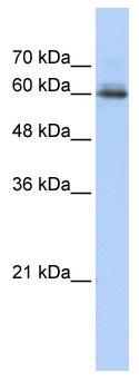 Western blot - Anti-SEMA4F antibody (ab86549)