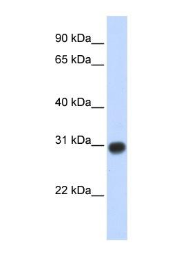 Western blot - Anti-ZMYND19 antibody (ab86555)