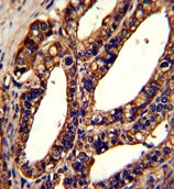 Immunohistochemistry (Formalin/PFA-fixed paraffin-embedded sections) - Anti-Orai1 antibody (ab86748)