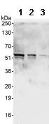 Western blot - Anti-RBM34 antibody (ab86787)