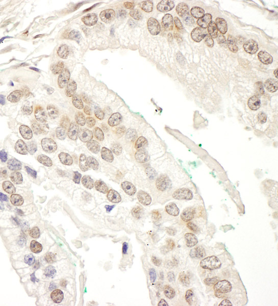 Immunohistochemistry (Formalin/PFA-fixed paraffin-embedded sections) - Anti-RBM34 antibody (ab86787)