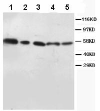 Western blot - Anti-AKT1/2 antibody (ab86926)