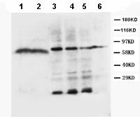 Western blot - Anti-Lipoprotein lipase antibody (ab86927)