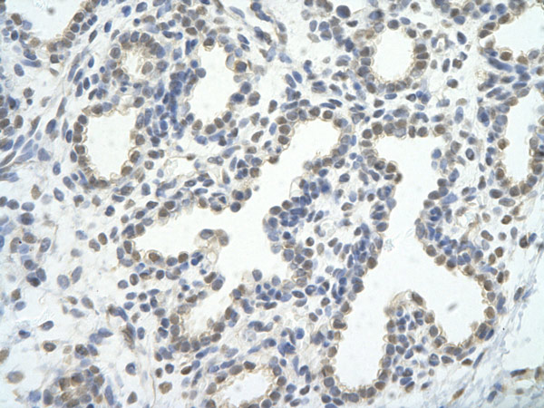 Immunohistochemistry (Formalin/PFA-fixed paraffin-embedded sections) - Anti-CDC5L antibody (ab86971)