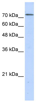 Western blot - Anti-BOP1 antibody (ab86982)