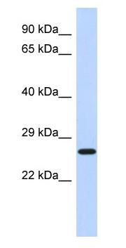 Western blot - Anti-EFHD2 antibody (ab87006)