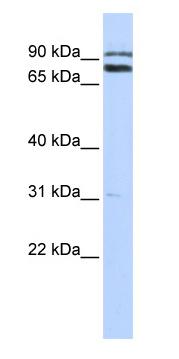 Western blot - Anti-TRIM67 antibody (ab87007)