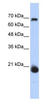 Western blot - Anti-MIA40 antibody (ab87033)