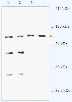 Western blot - Anti-ABR antibody (ab87047)
