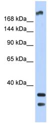 Western blot - Anti-TRPM2 antibody (ab87050)