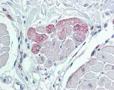 Immunohistochemistry (Formalin/PFA-fixed paraffin-embedded sections) - Anti-TRPM2 antibody (ab87050)