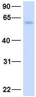 Western blot - Anti-AMCase antibody (ab87078)