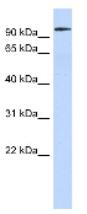 Western blot - Anti-SP3 antibody (ab87091)