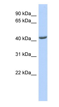 Western blot - Anti-ST3GAL4 antibody (ab87114)