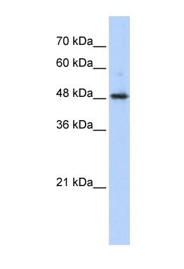 Western blot - Anti-ABHD2 antibody (ab87157)