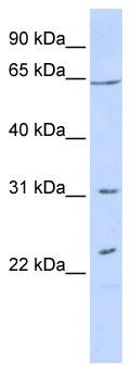 Western blot - Anti-EME1 antibody (ab87170)