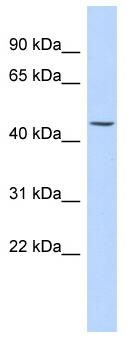 Western blot - Anti-KRT24 antibody (ab87195)