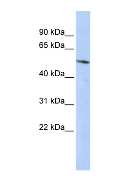 Western blot - Anti-BCL6B antibody (ab87228)